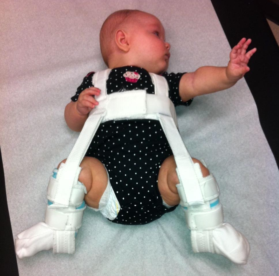 College of Medicine – Harness Treats Infant Hip Dysplasia